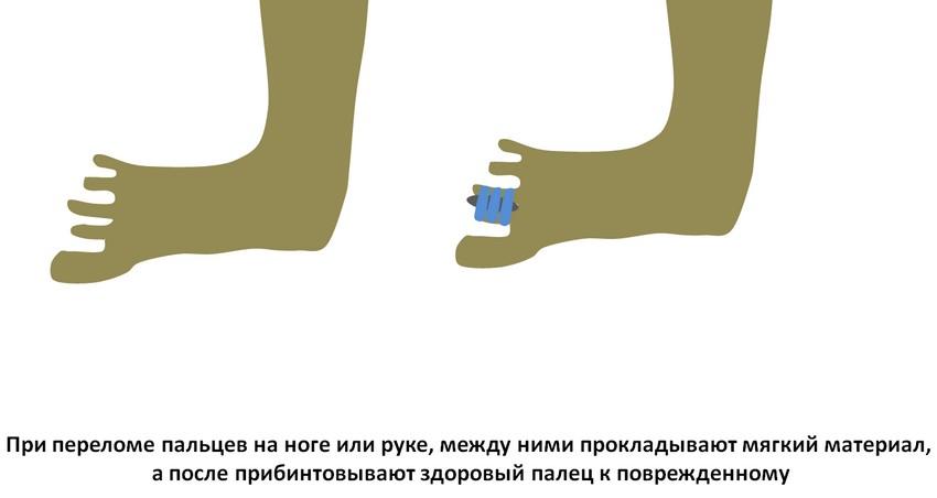 perelom-na-rybalke-3